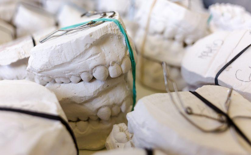 Złe podejście żywienia się to większe niedostatki w zębach oraz dodatkowo ich utratę