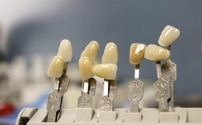 Śliczne urodziwe zęby również godny podziwu uroczy uśmiech to powód do płenego uśmiechu.